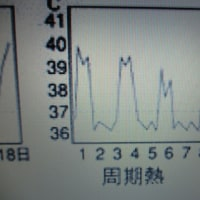 発熱の鑑別診断 2