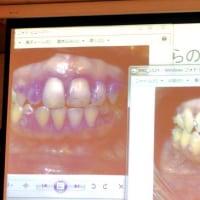 歯垢が赤く見えるハミガキで実感! 電動歯ブラシを使う意義♪