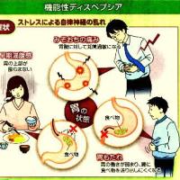 「機能性ディスペプシア」という胃の病気侮るなかれ!