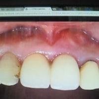 審美部位への抜歯即時植立即時荷重修復インプラント治療実例 MIS低侵襲手術1回きり痛みも腫れもありません