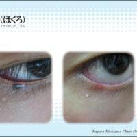 東京銀座 名古屋栄 目の縁のホクロの安全なレーザー除去術は、信頼のにしやまクリニックグループで!