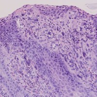 Bizzare stromal cell, reflux esophagitis, GERD
