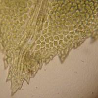 綺麗なコケの顕微鏡写真:トサカホウオウゴケの葉先は鳥の鶏冠のように切れ込みます。