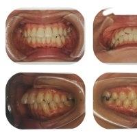 歯列矯正 カウンセリング其の壱