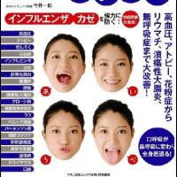 【あいうべ体操】
