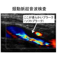 血管の壁を判定する方法