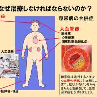 【治せない説が蔓延してますけど?味塩、甘味料、油、調味料、洗剤、便利なものに何かが有るのでは?】糖尿病という本当の恐怖