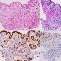H. pylori陰性がん -未感染胃の微小褪色域-
