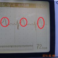 山口県警は中性子線照射を直ちに止めよ!中性子線使用は国民攻撃の意味