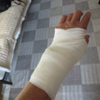 母指CM関節症の治療