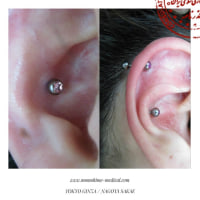 耳の穴に近い凹みのある部分をインナーコンク、コンヘアと言います。