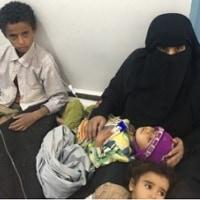 コンゴの住民虐殺 中央アフリカの民兵組織衝突 イエメンではコレラが蔓延・・・世界の現状