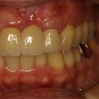 歯ぐきが壊死してなくなったケースも歯ぐきの再生で回復する事ができました.