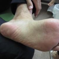 僕の足と手のお話し