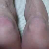 膝痛(-_-;)