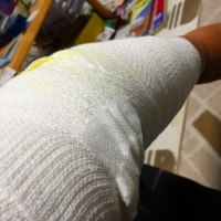 左腕肘の痛み