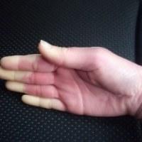 膠原病 シェーグレン症候群 治療中8 レイノー症状
