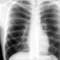 結核(肺結核)の原因・症状