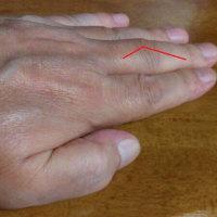 ばね指、手術~経緯と結果
