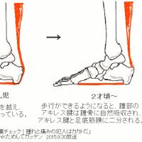足底筋膜炎の針灸治療 Ver 1.3