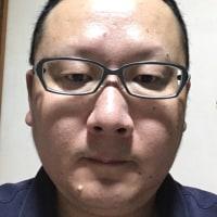 ロトリガ粒状カプセル ⇨ トライコア53.3  2錠朝