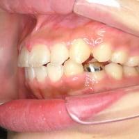 奥歯の噛み合わせが重要
