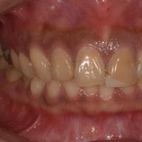 前歯部セラミック修復治療