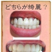 歯ぐきのスキマが埋まると。。運気がたまる??⑨