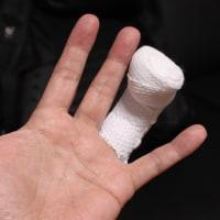 左環指末節骨骨折