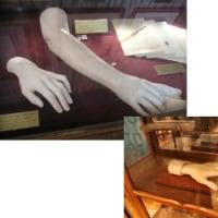 もりしの右手装具完成と、目の前で交通事故…(;´Д`)