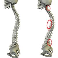 胸椎後弯へのアプローチで診るべき所     金沢市   腰痛   整体院    樹
