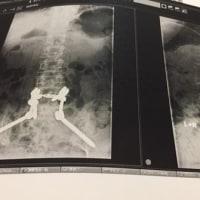 入院12日目