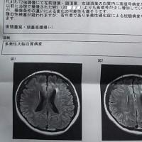 【2017年2月4日】■特別ダジャレ■約1週間の脳の精密検査入院から、無事に退院しました(*σ´Д)σYO!!