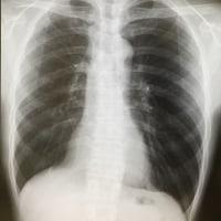 2.5年目の肺