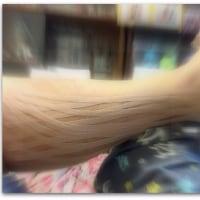 【肉離れ】経過観察日記
