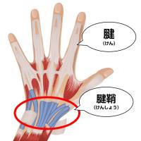 腱鞘炎の手術をしても指が動かない      金沢市   整体院   治療    バネ指