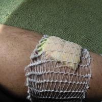 怪我の対応
