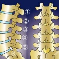 腰椎が6個ある患者さん     金沢市   腰痛    坐骨神経痛