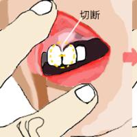 前歯のブリッジ金属を切断