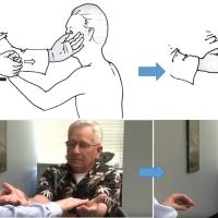 安全なHolmes-Stewart反跳現象の診察とその意義