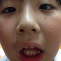 ブランブランの歯