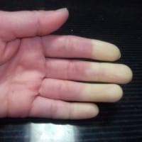 膠原病 シェーグレン症候群9 新たな病気 !?