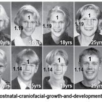 """""""目歯比率"""" に根拠はあるのか? :  成長による変化は?"""