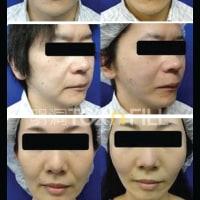 観光スポットとしても話題の韓国の美容皮膚科