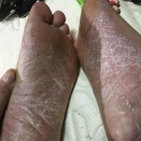 掌蹠膿疱症患者のLINEグループチャット。