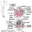 シンスプリントの針灸治療