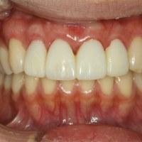 歯茎が下がってしまったときの歯茎の再生処置