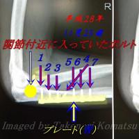 複雑骨折した右腕に入っていたボルトとプレート( 大怪我から半年経過 )