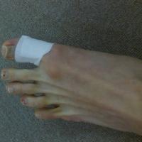 【剣道】足の皮膚が裂けたときの対処法 【香里園 かとう整骨院】