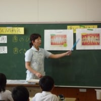 歯磨き指導 小学校
